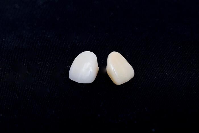 審美歯科で使用する素材